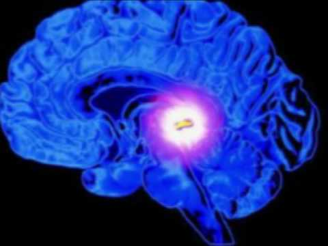 Dr. Manfred Doepp about the Pineal Gland & 4G Wireless Assault
